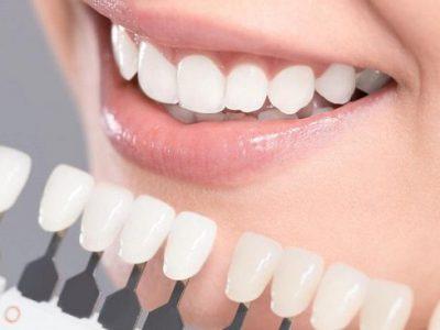 مراقبتهای بعد از روکش دندان