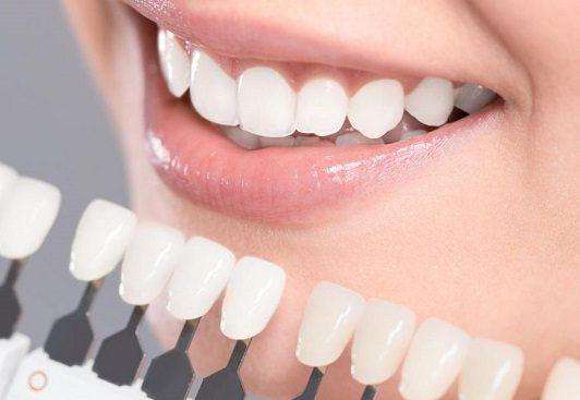 روکش-دندانی-و-بهداشت-دندان-روکش-شده-با-مسواک-و-نخ-دندان-مخصوص-e1562591377877.jpg