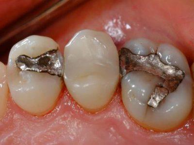 مراقبتهای پس از ترمیم و پرکردن دندان