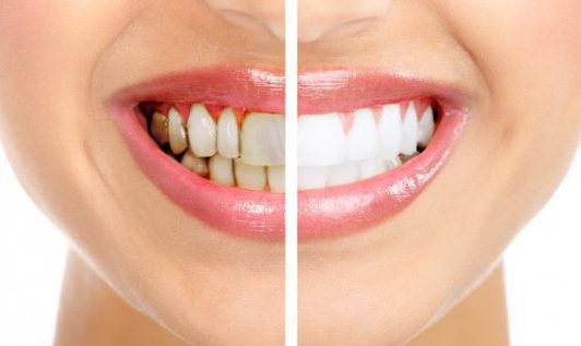 Tooth-Staining-700x460-e1562593842705.jpg