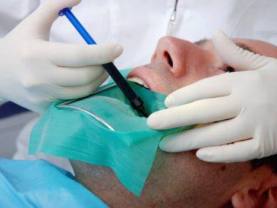عصب کشی دندان چگونه انجام میشود؟