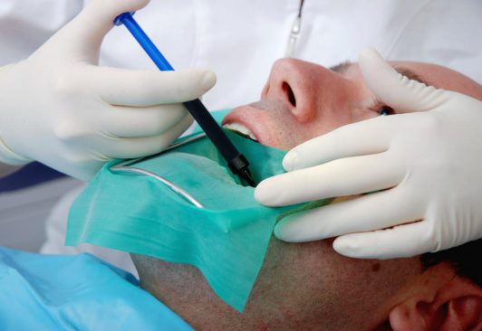 root-canal-e1563793599347.jpg