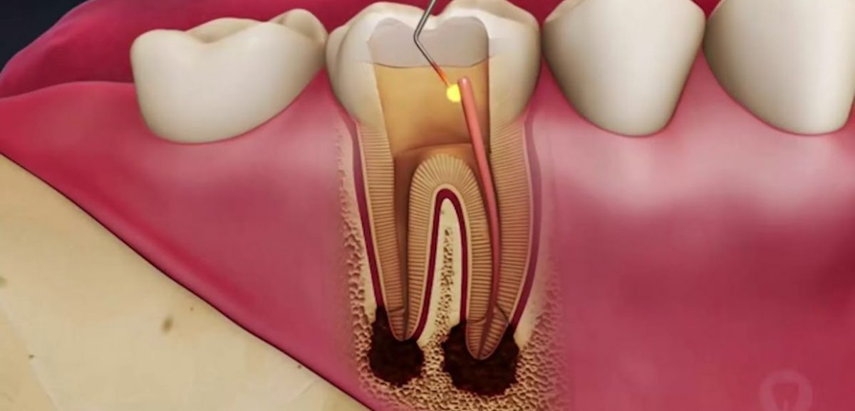 root-canal-procedure-1245x600-1200x578.jpg