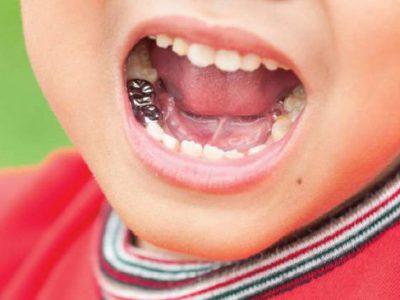 آیا دندان شیری نیاز به عصب کشی دارد؟