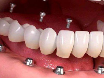 آیا احتمال ابتلا به کرونا هنگام ایمپلنت دندان وجود دارد؟