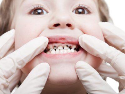 دندانپزشک کودکان در اسلامشهر